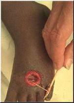 Guineaworm